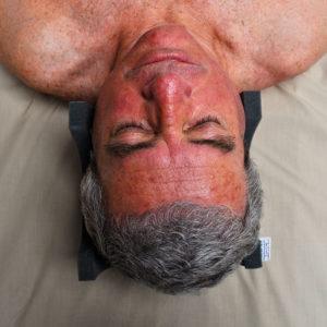 1-neurological-head-holder-and-foam-wedges