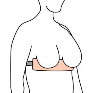 Breast Separator